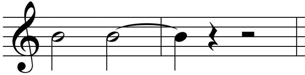 Ligadura de unión blanca y negra